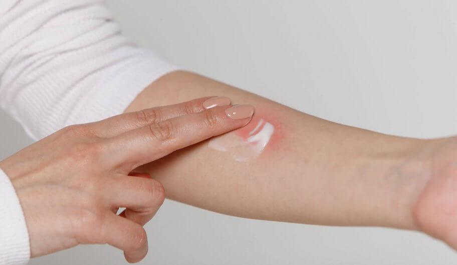 CBD Creme bei Hautirritation (Neurodermitis)