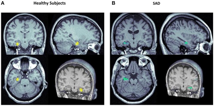Gehirn Scan Angsterkrankung CBD Öl